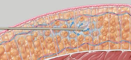 Experts In Vaser Liposuction La Nouvelle Medical Spa Ventura
