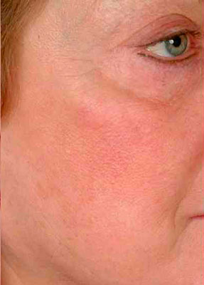 Laser Vein Removal - Face